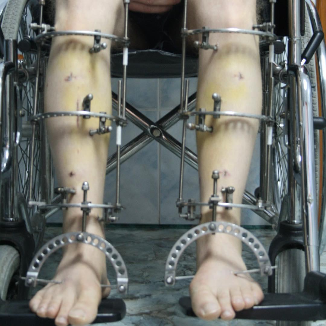 Аппарат Веклича при удлинении ног