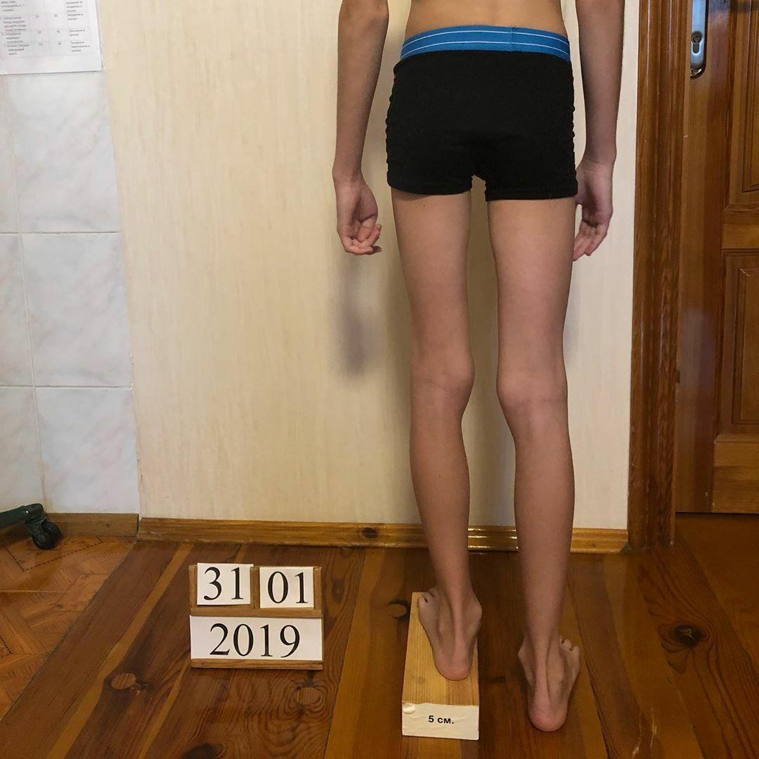 Коррекция длины ног при диспропорции