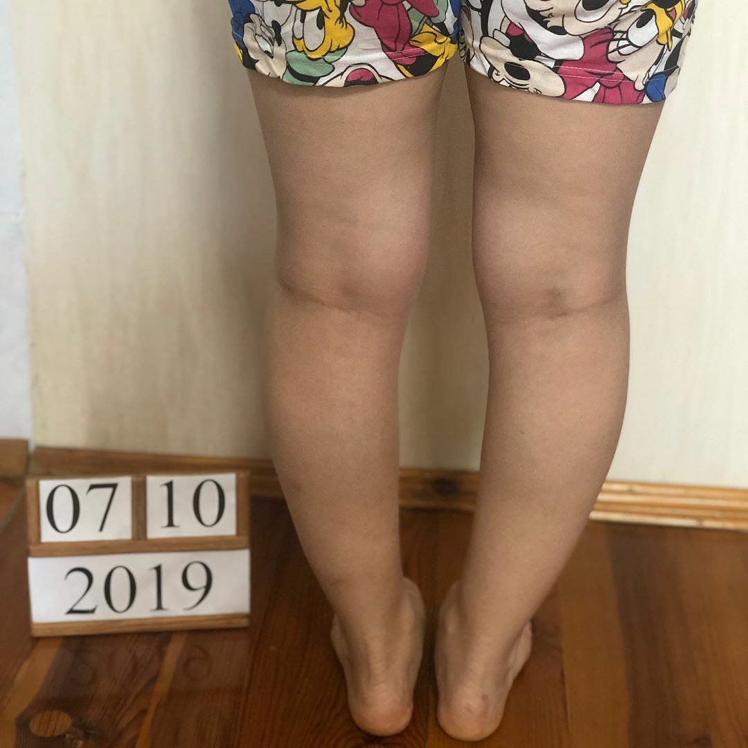 Коррекция варусной деформации ног, фото до коррекции