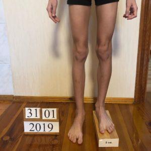Удлинение голени на 5 смс при диспропорции конечностей