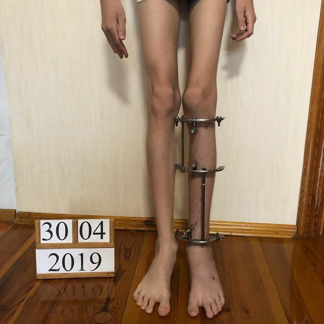 Результат коррекции длины ног с использованием аппарата Веклича
