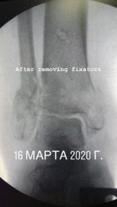 рентген при лечении переломов в аппарате внешней фиксации