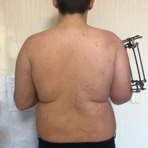 Укорочение правого плеча на 12 см. Этап фиксации