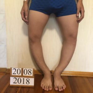Увеличение роста за счёт выравнивания ног