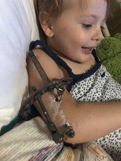 Лечение черезмищелкового перелома