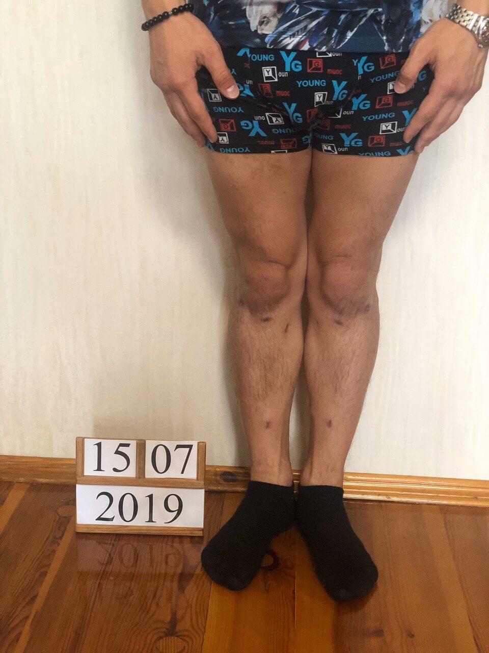 Результат коррекции варусной деформации ног аппаратом Веклича