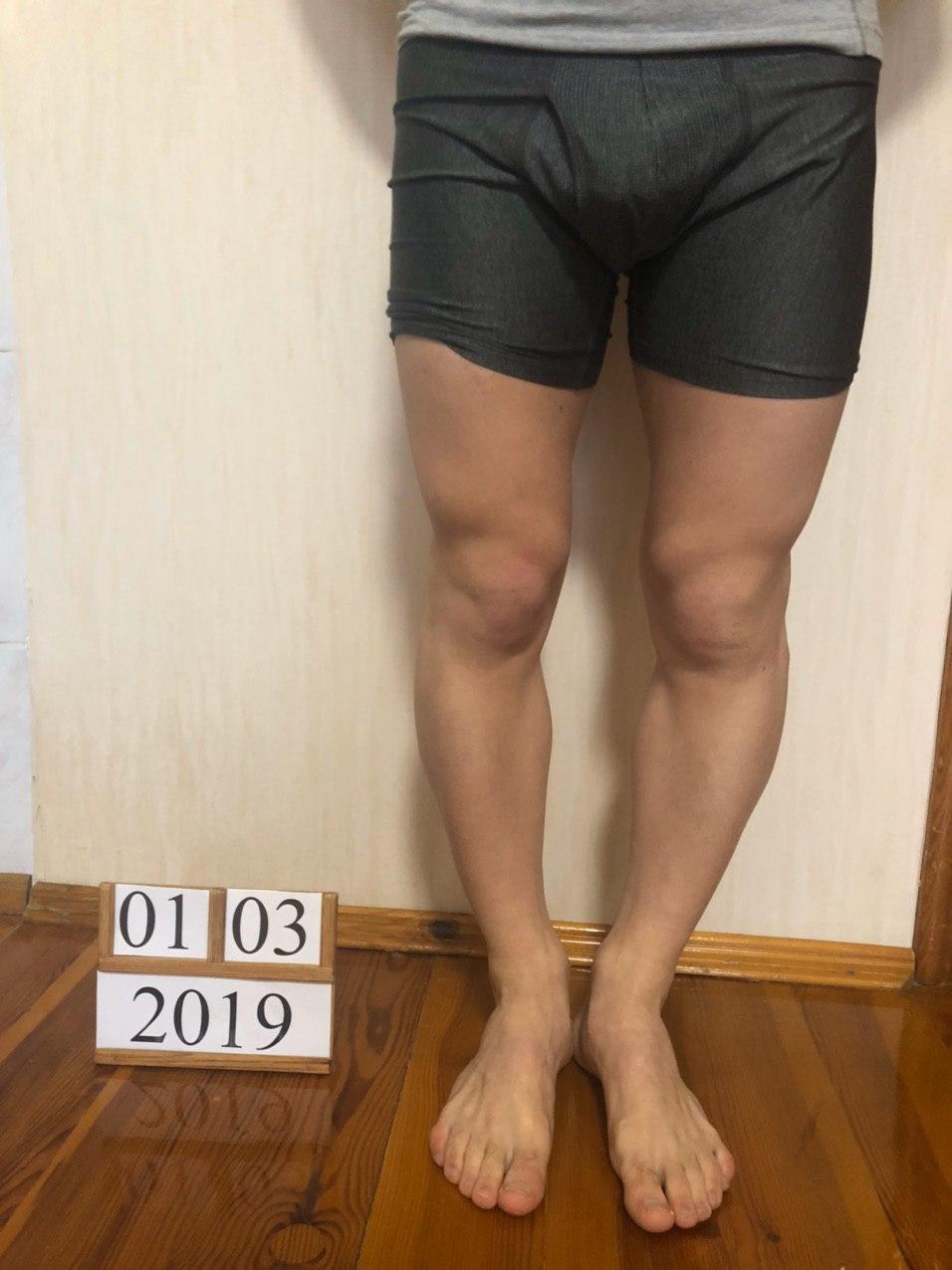 Коррекция варусной деформации ног аппаратом Веклича