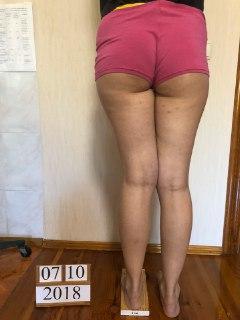 Коррекция вальгусной деформации и укорочение бедра на 2 см