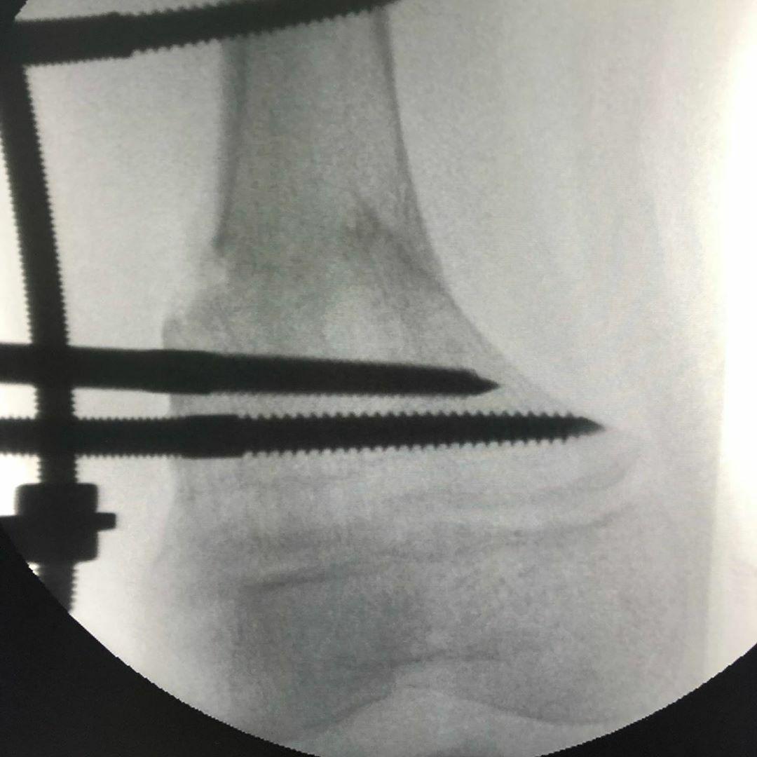 Рентген при коррекции аппаратом фиксации Веклича. Деформация ног Genu Valgum