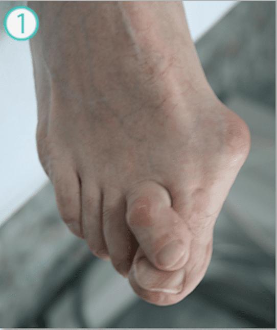 Коррекция вальгусной деформации правого пальца стопы