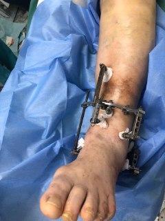 ДТП, закрытый трехлодыжечный перелом со смещением отломков