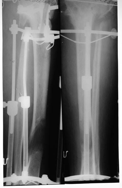 Открытый многооскольчатый перелом верхней трети большеберцевой кости