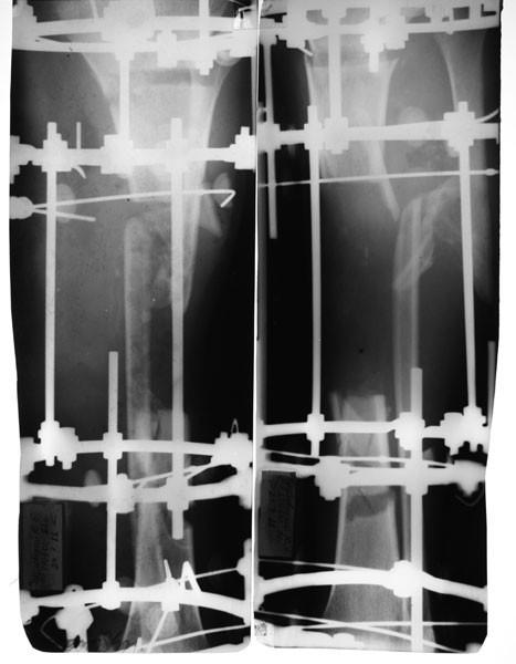 Замещение дефектов костей голеней