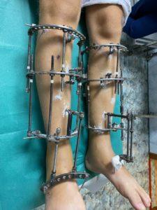 удлинение голени - фото реабилитации в аппаратах фиксации