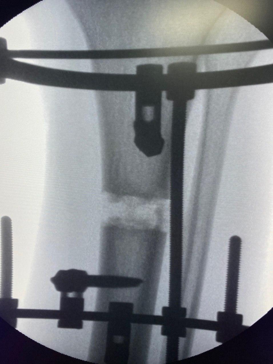 удлинение голени - рентген аппаратов фиксации