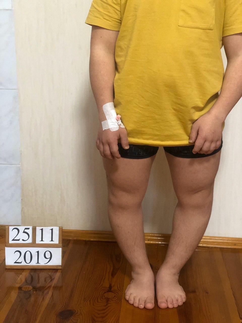 удлинение голени - фото до удлинения