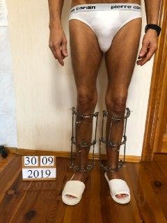 Удлинение ног. Фото результаты