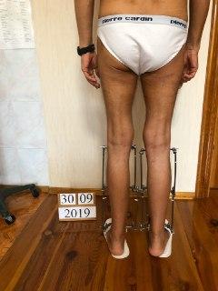 Удлинение ног. Рентген кости