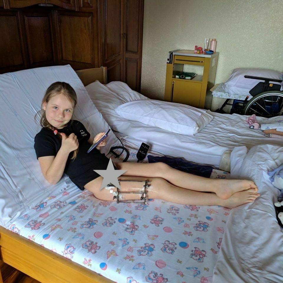 Coxa Valga оперативное лечение и реабилитация