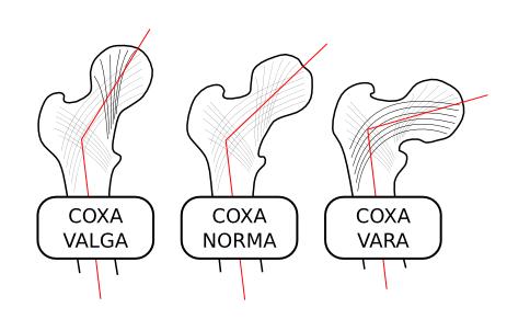 Стадии Coxa-Vara