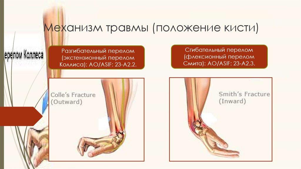 виды переломов кости коллеса и смита