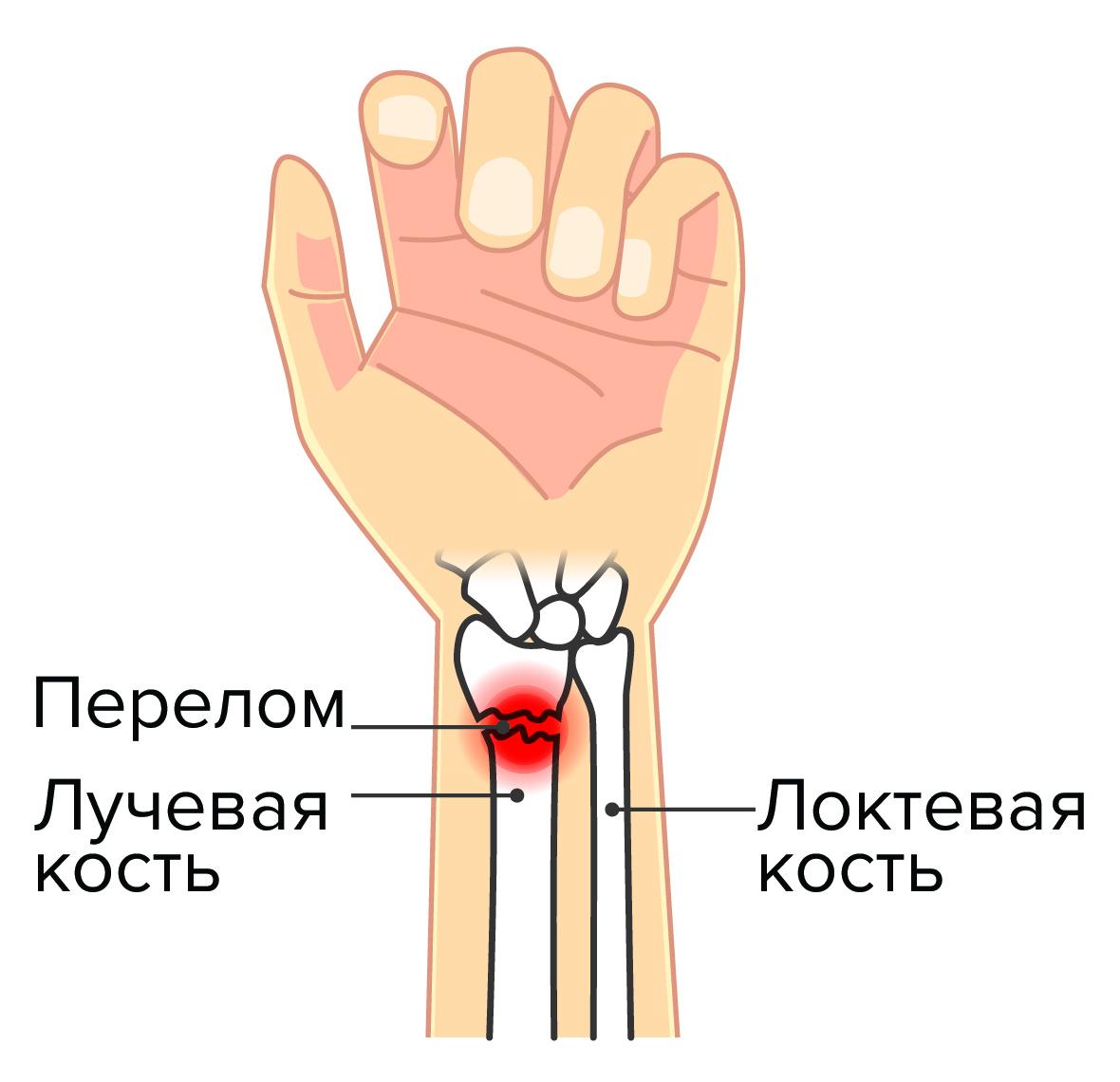 перелом лучевой кости запястья