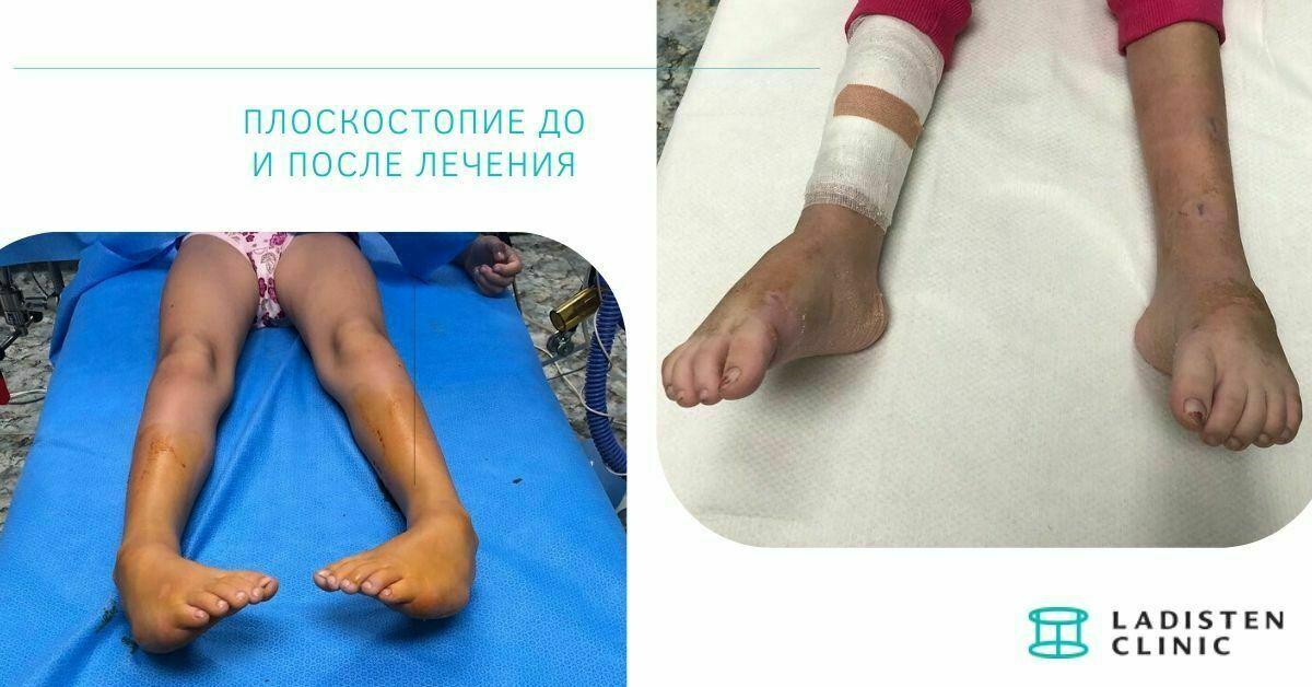 Лечение плоскостопия фото до и после