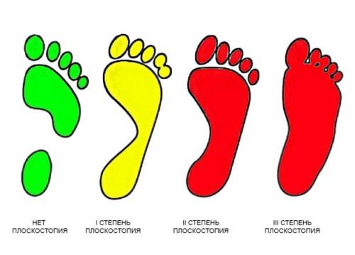 Симптомы и диагностика плоскостопия