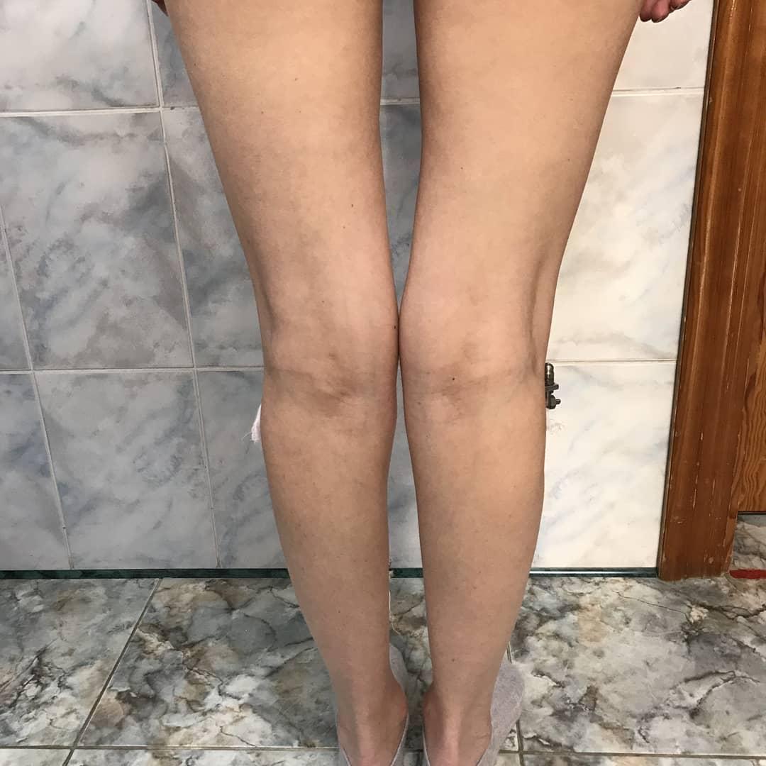 О-образные ноги после операции