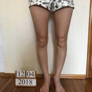О-образные ноги до операции