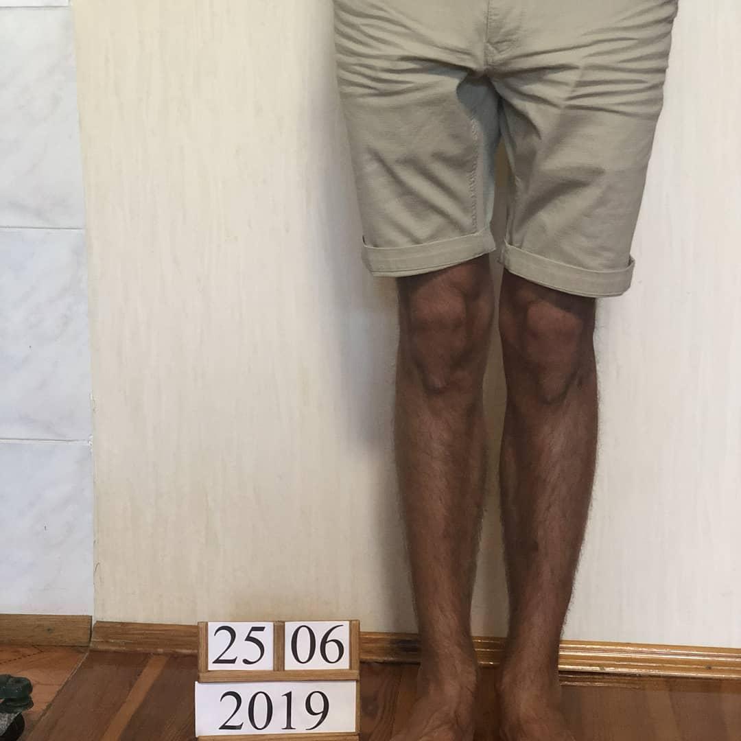 Выравнивание кривых ног у мужчины. Фото через 1 год