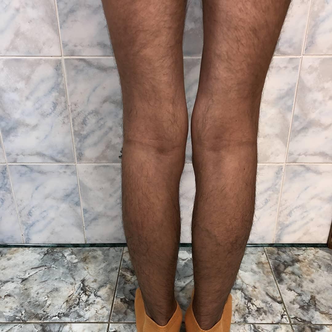 Выравнивание кривых ног у мужчины. Фото после