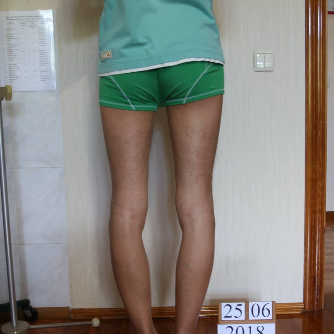 Выравнивание кривых ног у мужчины. Фото до