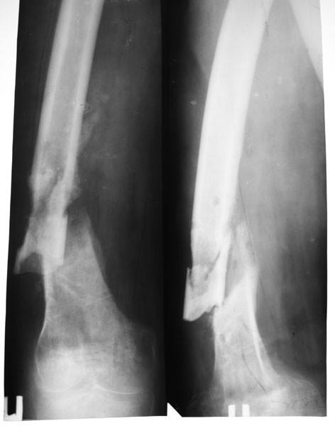 false joint, ложный сустав