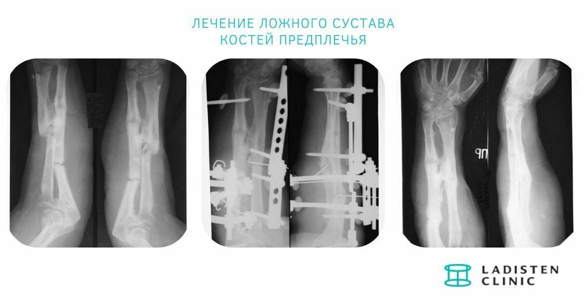 Лечение ложного сустава костей предплечья