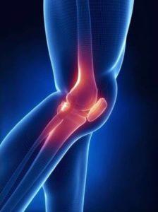 аномалии развития коленного сустава