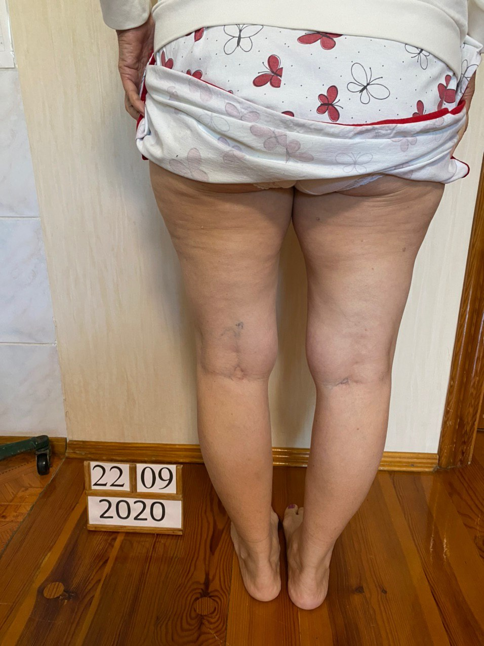 Результаты лечения артроза коленных суставов