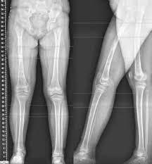 гипоплазия большеберцовой кости