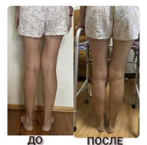 выравнивание о-образных ног